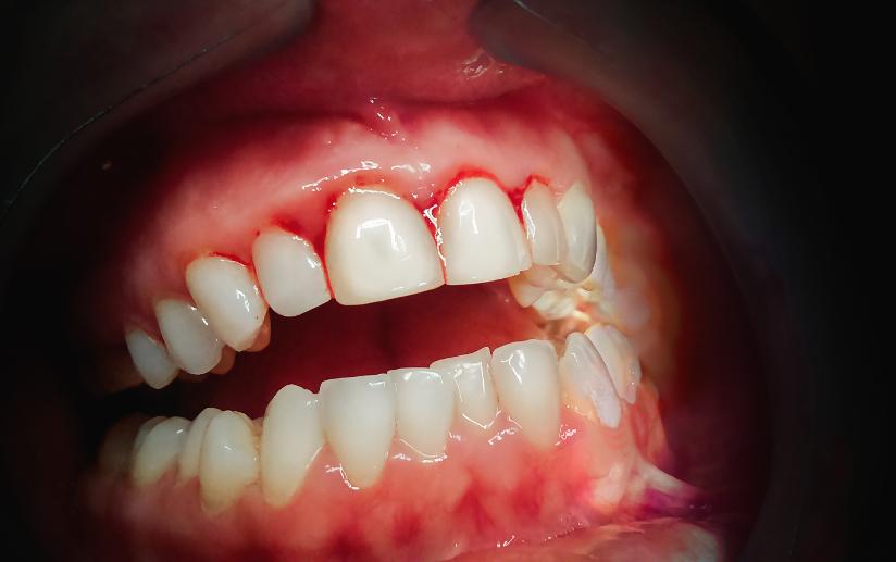 parodontitis probleem